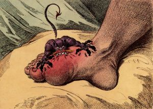 The Gout by James Gillray. Published May 14th 1799